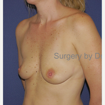 25-34 year old woman treated with Breast Augmentation before 3472578