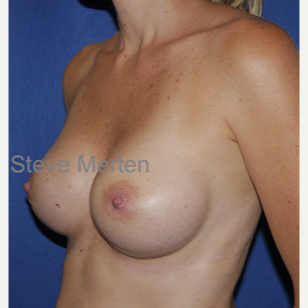 25-34 year old woman treated with Breast Augmentation after 3472578