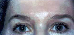 Dysport for frown lines, crows feet and forehead lines after 1394351