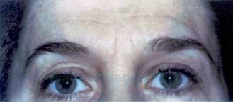 Dysport for frown lines, crows feet and forehead lines before 1394351