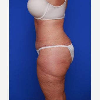 52 year old woman treated with Extended Tummy Tuck after 2198213