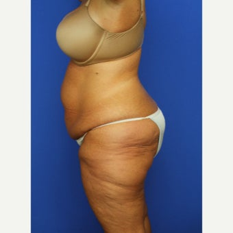 52 year old woman treated with Extended Tummy Tuck before 2198213