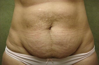 C.L.A.S.S ® Tummy Tuck before 479023
