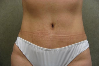 C.L.A.S.S ® Tummy Tuck after 479023