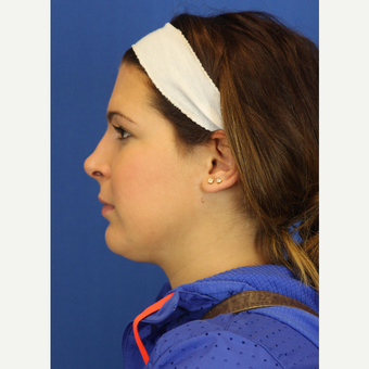 18-24 year old woman treated with Chin Liposuction