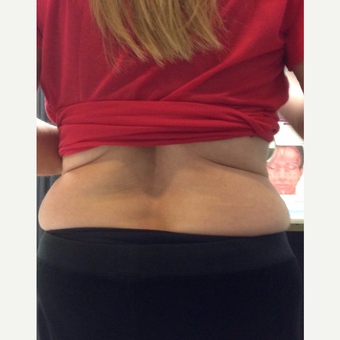 65-74 year old woman treated with Non-surgical RF Body Contouring Treatment before 3724562