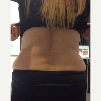 65-74 year old woman treated with Non-surgical RF Body Contouring Treatment after 3724562