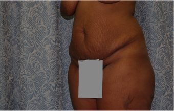 2 Month Post Operative Abdominoplasty 1112589