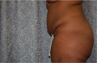 2 Month Post Operative Abdominoplasty before 1112589