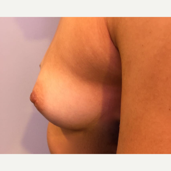 18-24 year old woman treated with Breast Augmentation before 3788728