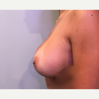 18-24 year old woman treated with Breast Augmentation after 3788728
