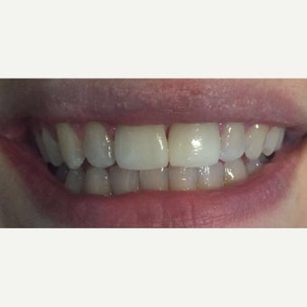 25-34 year old woman treated with Zoom Whitening after 2640815