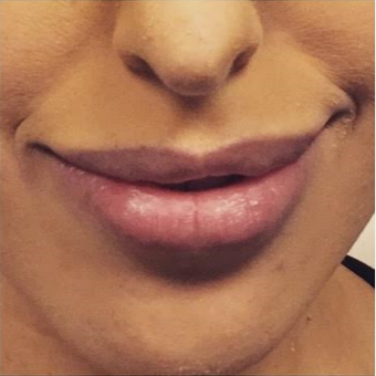 25-34 year old woman treated with Juvederm before 3072038