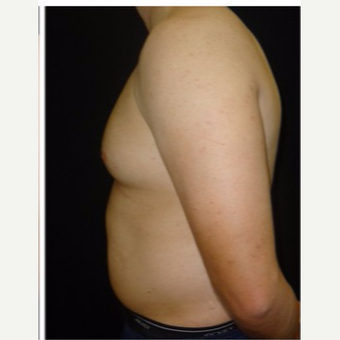 25-34 year old man treated with Male Breast Reduction before 3186022
