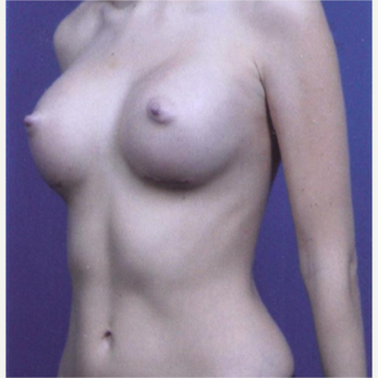 23 year old woman treated with Breast Augmentation - 450 cc high profile silicone gel implants after 3432336