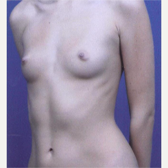 23 year old woman treated with Breast Augmentation - 450 cc high profile silicone gel implants before 3432336