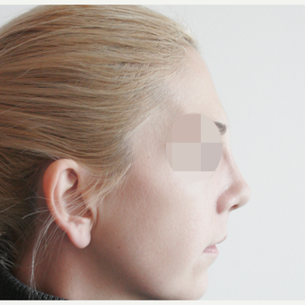 25-34 year old woman treated with Rhinoplasty after 3107611