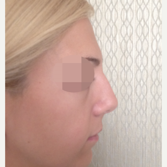 25-34 year old woman treated with Rhinoplasty before 3107611