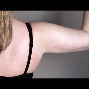 41 Year Old Female Arm Liposuction 1527827