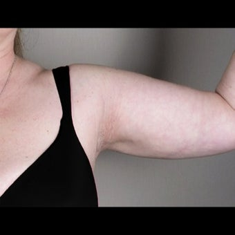 41 Year Old Female Arm Liposuction after 1527827