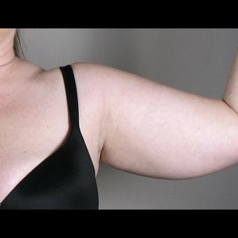 41 Year Old Female Arm Liposuction before 1527827