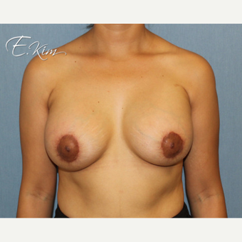 25-34 year old woman treated with Breast Lift with Implants after 3663460