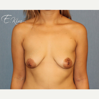25-34 year old woman treated with Breast Lift with Implants before 3663460