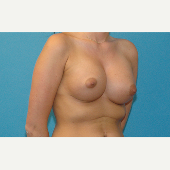 24 year old woman treated with Breast Implants after 3181992