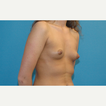 24 year old woman treated with Breast Implants before 3181992