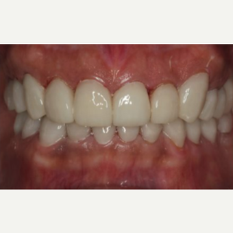 55-64 year old woman treated with Dental Implants after 3241308