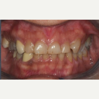 55-64 year old woman treated with Dental Implants before 3241308