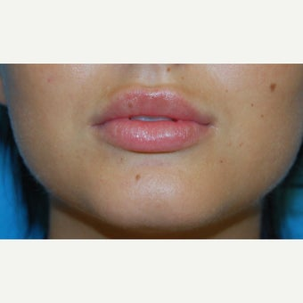 25-34 year old woman treated with Lip Augmentation after 1606481