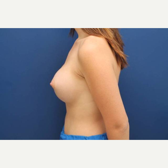 39 year old female, Ideal breast implants, 425cc, submuscular after 3814506