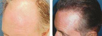 45-54 year old man treated with Hair Transplant before 3502884