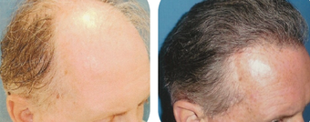 45-54 year old man treated with Hair Transplant after 3502884