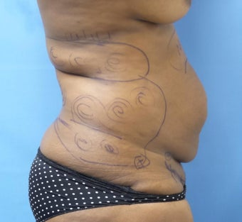 35-44 year old woman treated with Tummy Tuck before 3168380