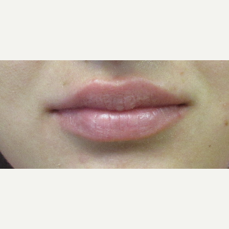 23 year old Juvederm in the lips after 3241174