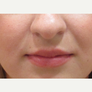 23 year old Juvederm in the lips before 3241174