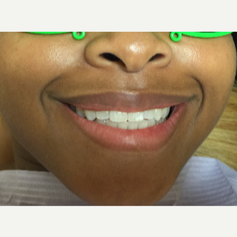 18-24 year old model treated with ten Porcelain Veneers