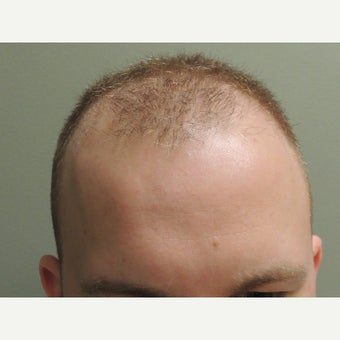 25-34 year old man treated with Hair Transplant 1897566