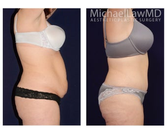 Abdominoplasty before 1476469