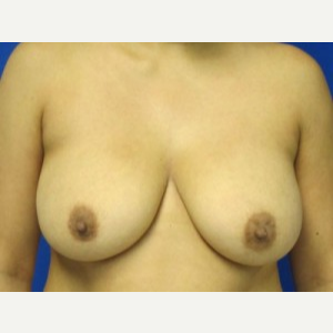 Breast Augmentation before 3054924