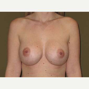 25-34 year old woman treated with Breast Augmentation after 3621390
