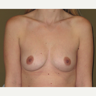 25-34 year old woman treated with Breast Augmentation before 3621390