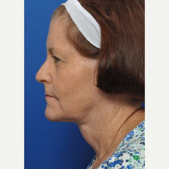 55-64 year old woman treated with Neck Lift after 3439967