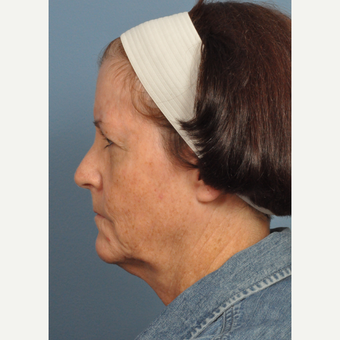 55-64 year old woman treated with Neck Lift before 3439967