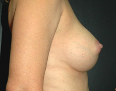 Breast Implants after 3545011