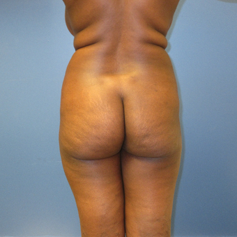 35-44 year old woman treated with Brazilian Butt Lift before 3851619