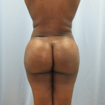 35-44 year old woman treated with Brazilian Butt Lift after 3851619