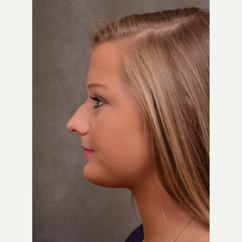 17 or under year old woman treated with Rhinoplasty before 3530496
